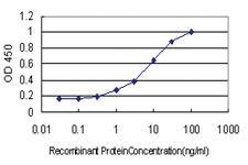 Anti-ZNF202 Mouse Monoclonal Antibody